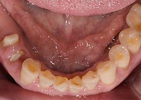 歯ぎしり マウス ピース 効果